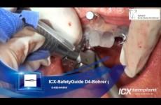 ICX-MAGELLAN-ICX-SafetyGuide-System-Verankerung-einer-Totalprothese-im-Oberkiefer